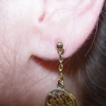 nipple-reconstruction-ear-2