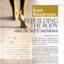 Rebuilding the Body and the Self Confidence