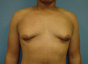 gynecomastia_3